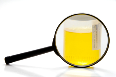 Urine sample ready for drug testing.
